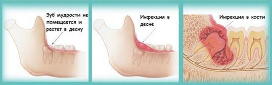 Осложнения при воспалении зуба мудрости
