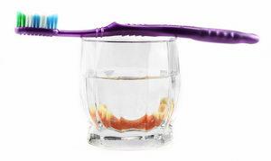 Уход за зубными протезами: чистка, правила, средства