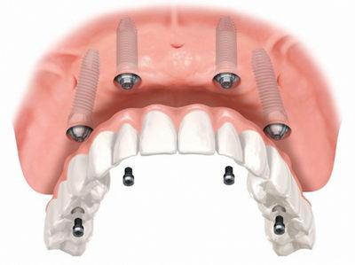 Покрывной протез на четырех имплантатах