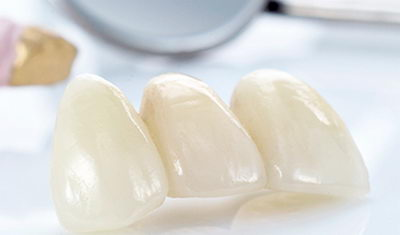 Временные протезы на зубы
