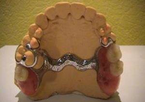 Бюгельный протез на верхнюю челюсть: установка, уход, отзывы