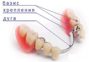 Конструкция зубного протеза