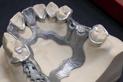 Шинирующий бюгельный зубной протез