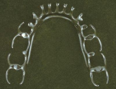 Бюгельный шинирующий протез на нижнюю челюсть