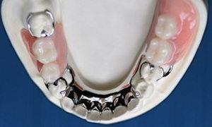 Бюгельный протез на нижнюю челюсть: уход, установка, отзывы, достоинства