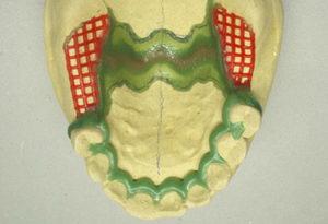 Этапы изготовления бюгельного протеза: клинический и лабораторный