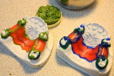 Этапы изготовления зубного бюгельного протеза