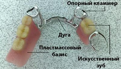 Строение бюгельного протеза на кламмерах