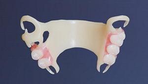 Зубные протезы Квадротти: цена, отзывы, установка, видео