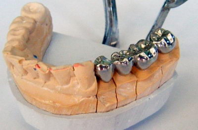 Установка протеза на модели