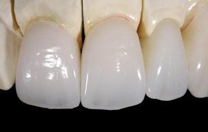 Безметалловая керамика на зубы: виды, изготовление, установка, стоимость, уход