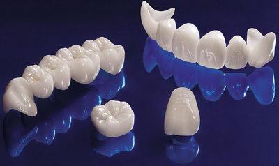Безметалловое протезирование из керамики