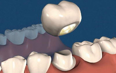 Несъемная коронка на зуб