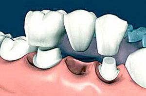 Несъемные зубные протезы: назначение, установка, цена, достоинства, недостатки