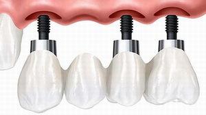 Что такое протезирование на имплантах?