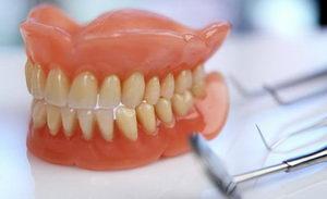 Что такое съемные зубные протезы? Столько стоят?
