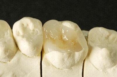 Вкладка на зубы