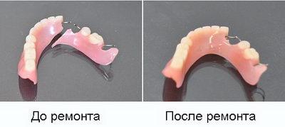 Зубной протез до и после ремонта