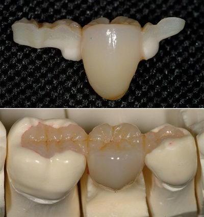 Протезирование одного зуба на присосках