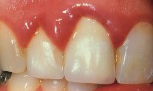 Чем опасен катаральный гингивит?