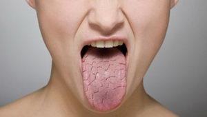 Что такое складчатый язык?