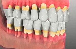 Можно ли вылечить пародонтоз и остановить выпадение зубов?