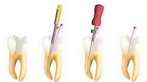 Пломбирование каналов зуба гуттаперчей: методы
