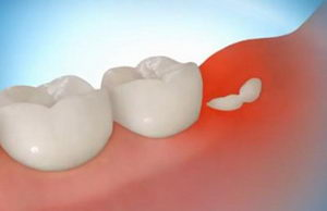 Затрудненное прорезывание зуба мудрости - воспаление десны