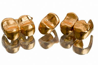 Коронки из золота