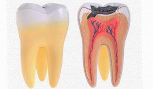 Что такое зубной пульпит?