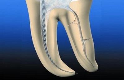 Болит в корне зуба после пломбирования