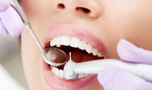 Про лечение кариеса зубов