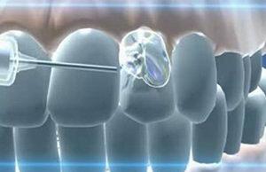 Какие есть материалы для пломбирования зубов?
