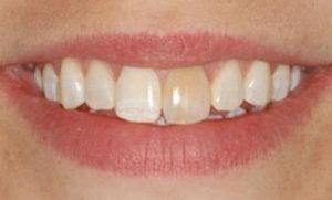 Почему темнеют зубы? Причины, методы лечения