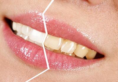 Почему зубы начали темнеть?