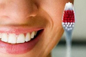 Для чего нужна профилактика зубного камня?