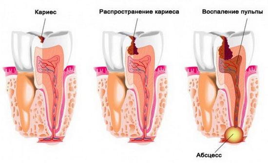 Схема появления кисты на корне зуба