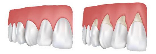 Здоровые зубы и рецессия десны: сравнение