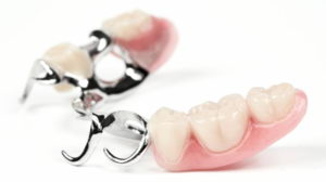 Какие существуют зубные протезы нового поколения?