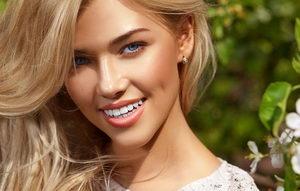 Голливудская улыбка с помощью виниров: как её получить?