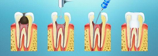 Лечение зубов с проблемными корневыми каналами