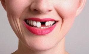 В чем главная причина потери зубов?