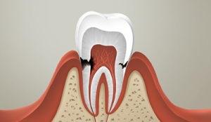 Что такое пришеечный кариес зубов?
