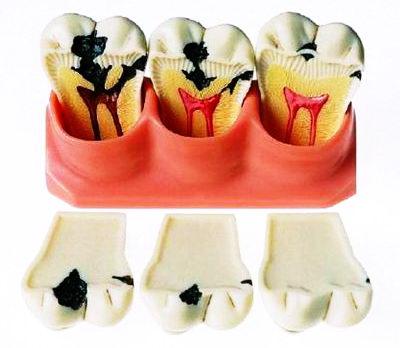 Зуб с дыркой