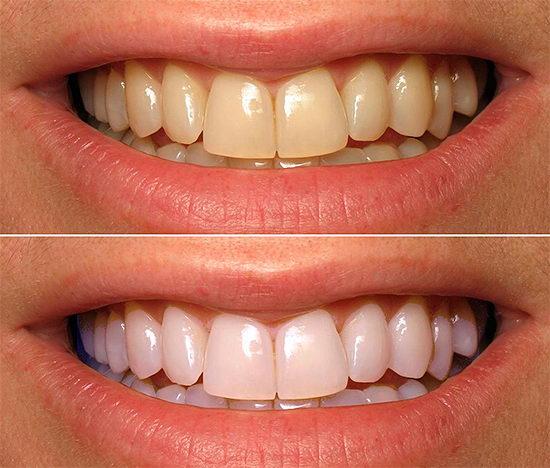 Зубы до и после фотоотбеливания