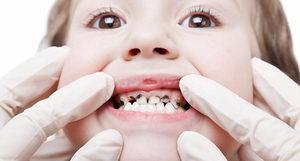 Из-за чего чернеют зубы у детей?