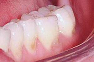 Что такое эрозия эмали зубов? Методы лечения