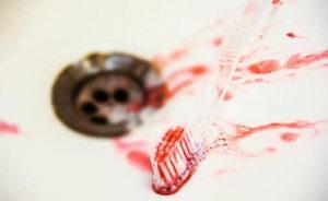 Из-за чего возникает кровоточивость десен?