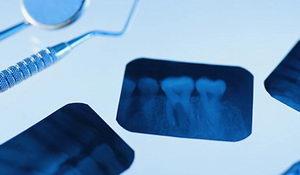 Что такое рентген зубов?