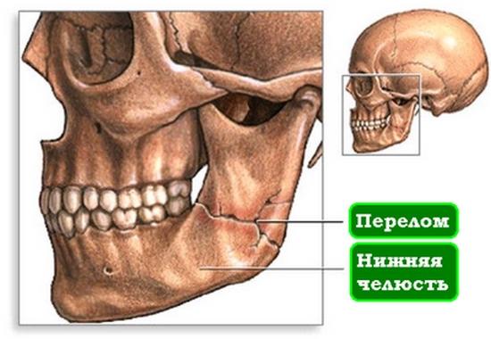 Сломана нижняя челюсть